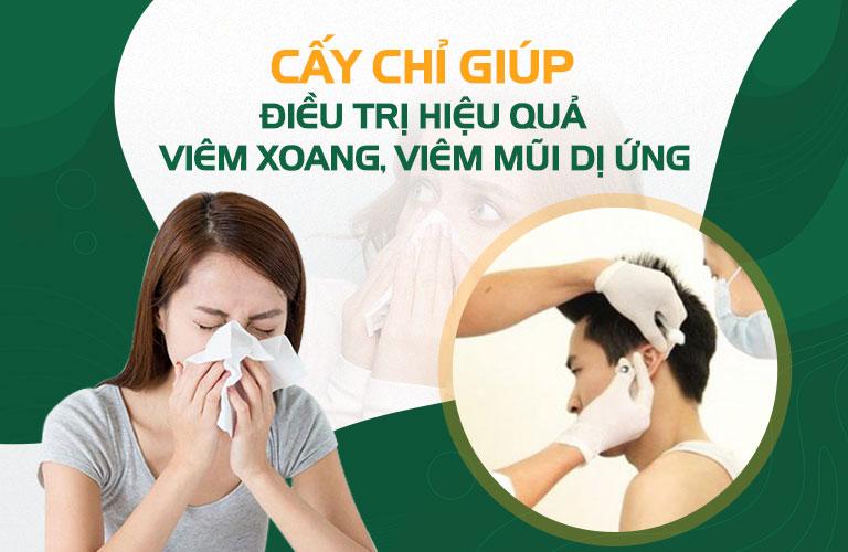 Cấy chỉ chữa viêm xoang, viêm mũi dị ứng rất hiệu quả