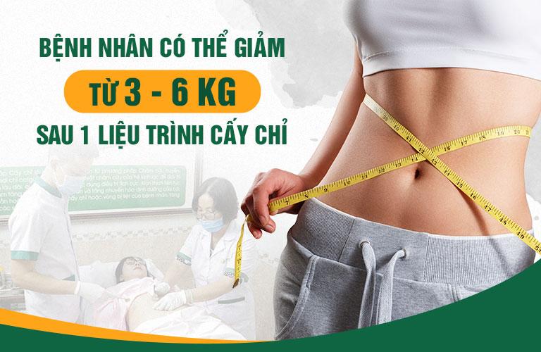 Cấy chỉ giảm béo mang lại hiệu quả cao và an toàn