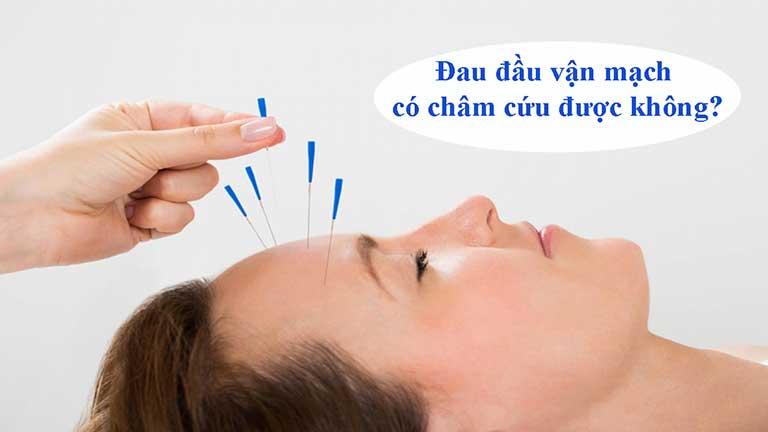 Châm cứu đau đầu vận mạch