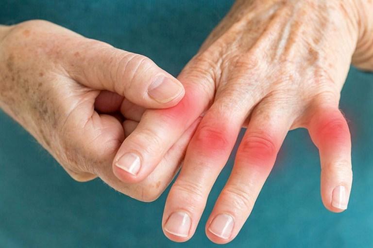 Áp dụng day ấn huyệt giúp giảm nhanh các triệu chứng sưng đau khớp ngón tay do nhiễm phong hàn