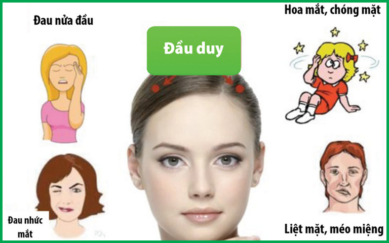 Đầu Duy là huyệt phát huy hiệu quả cao trong điều trị các bệnh vùng đầu - mặt như đau đầu, liệt mặt, méo miệng và các bệnh về mắt