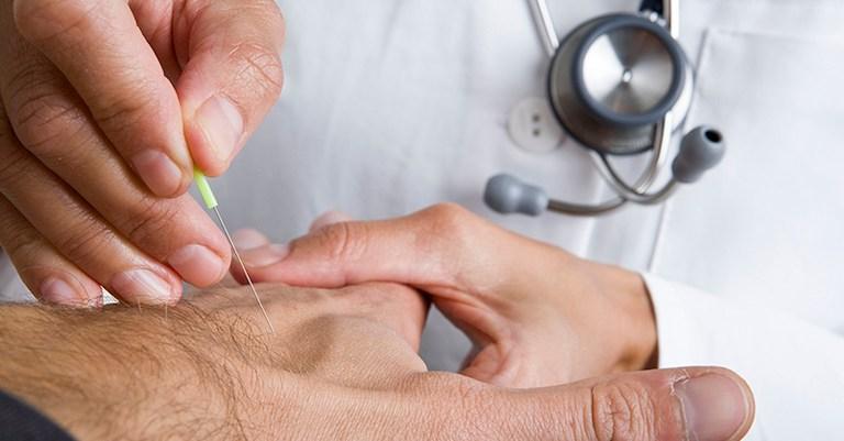 Có thể châm cứu huyệt để điều trị bệnh liên quan