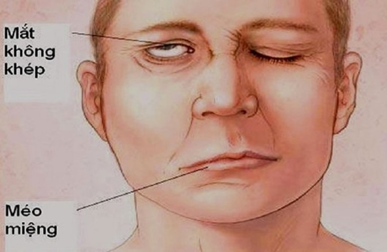 Trị đau răng với cách bấm huyệt giáp xa