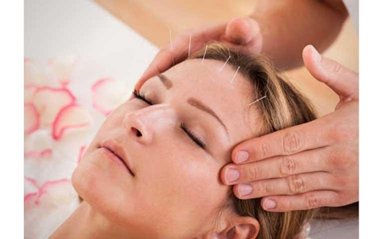Châm cứu đau đầu mang lại nhiều tác dụng