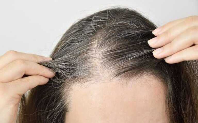 Bấm huyệt chữa tóc bạc là phương pháp nhận được nhiều sự tin tưởng của mọi người