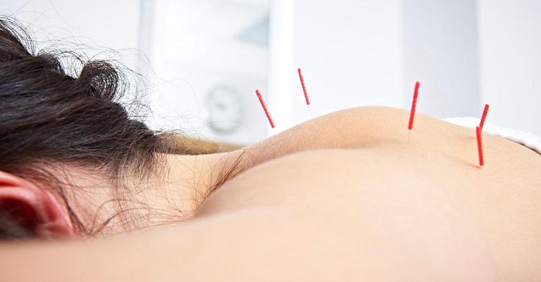 Phòng khám áp dụng thủ thuật châm cứu điều trị đau nhức vai gáy mãn tính