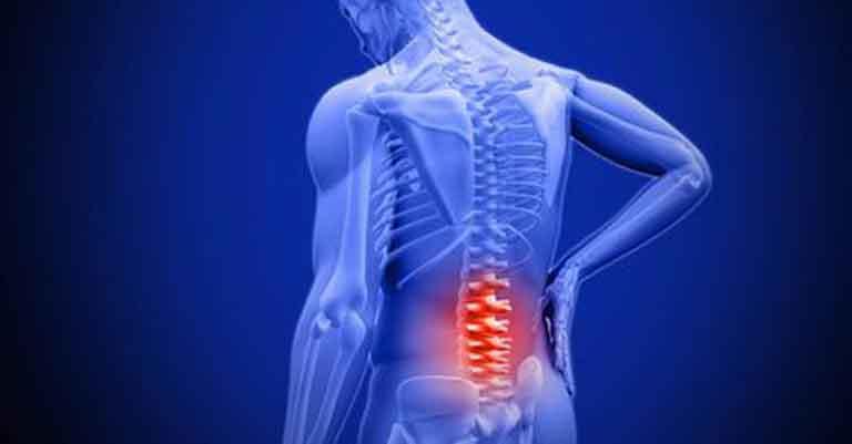 Triệu chứng đau lưng mệt mỏi cũng có thể là triệu chứng của bệnh viêm cột sống