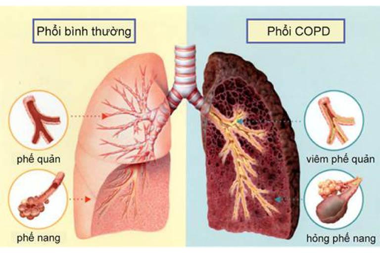 Bệnh phổi tắc nghẽn cần được cấp cứu kịp thời nếu không sẽ để lại hậu quả nghiêm trọng