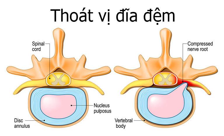 Thoát vị đĩa đệm sẽ có dấu hiệu đầu tiên là đau lưng sau phổi
