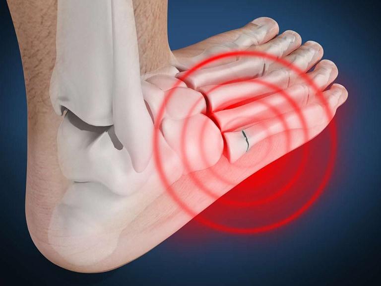 Bệnh đau nhức xương khớp chân
