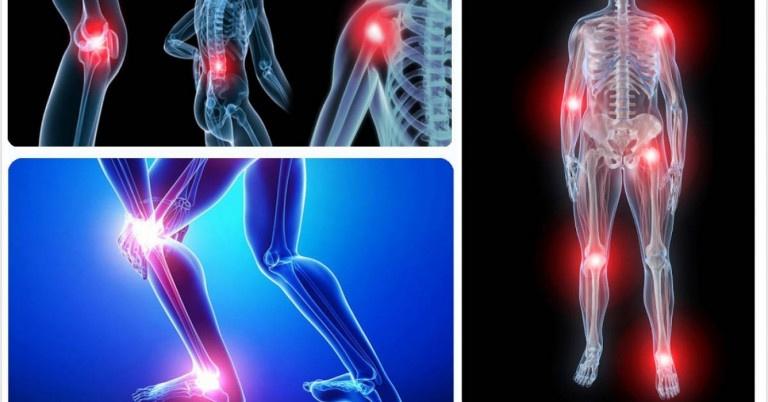 Nguyên nhân gây ra chứng đau nhức xương khớp khi thay đổi thời tiết