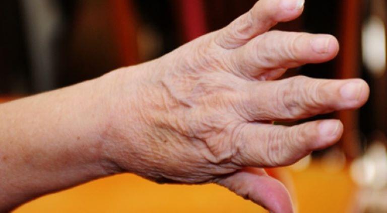 Biến dạng khớp tay làm suy giảm chức năng vận động ở người cao tuổi