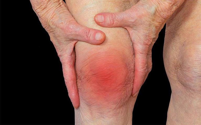 Đau nhức xương khớp do viêm nhiễm thường đi kèm triệu chứng sưng, nóng xung quanh vị trí khớp.