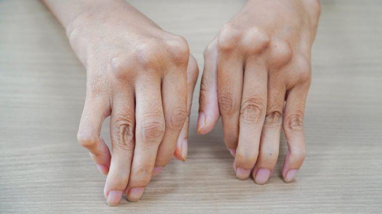 Nếu không điều trị bệnh xương khớp kịp thời, người trẻ có thể phải đối diện với nguy cơ bị suy giảm chức năng vận động vĩnh viễn.