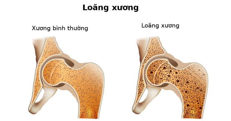 Ảnh hưởng của thuốc hoặc các bệnh lý khác làm gia tăng nguy cơ loãng xương ở người trẻ