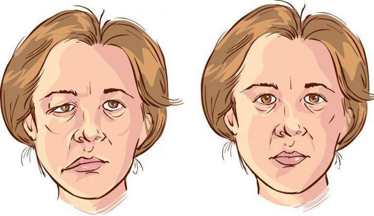 Trị bệnh méo miệng hiệu quả nhờ huyệt Vị duy