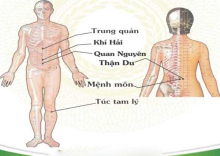 Phối huyệt Trung Quản trị được nhiều bệnh lý nguy hiểm
