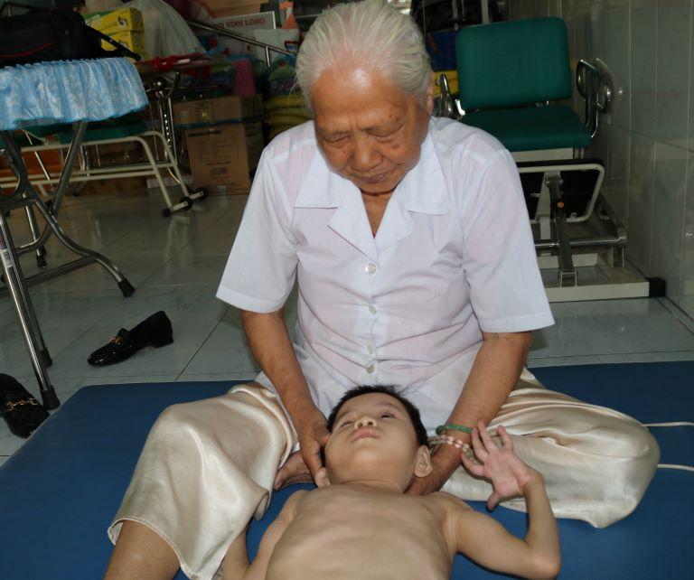 Phục hồi chức năng cho trẻ bại não bằng bấm huyệt