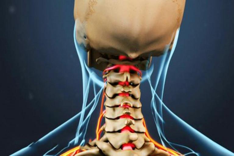 Các bệnh lý tiềm ẩn là một trong những nguyên nhân khiến bạn đau cổ gáy bên trái