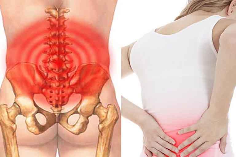 Đau lưng gần xương cụt có thể bắt nguồn từ những tư thế hoạt động không đúng
