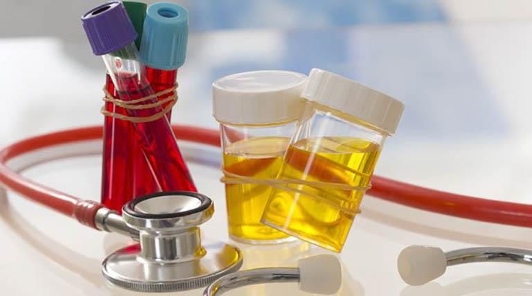 Người bệnh lưu ý không nên ăn uống trước khi thực hiện xét nghiệm máu và nước tiểu