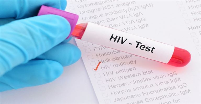 Xét nhiệm là phương pháp duy nhất để khẳng định đau nhức xương khớp có phải do virus HIV gây ra hay không