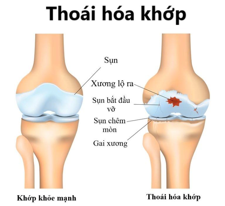 Thoái hóa khớp là nguyên nhân hàng đầu gây đau nhức xương khớp toàn thân