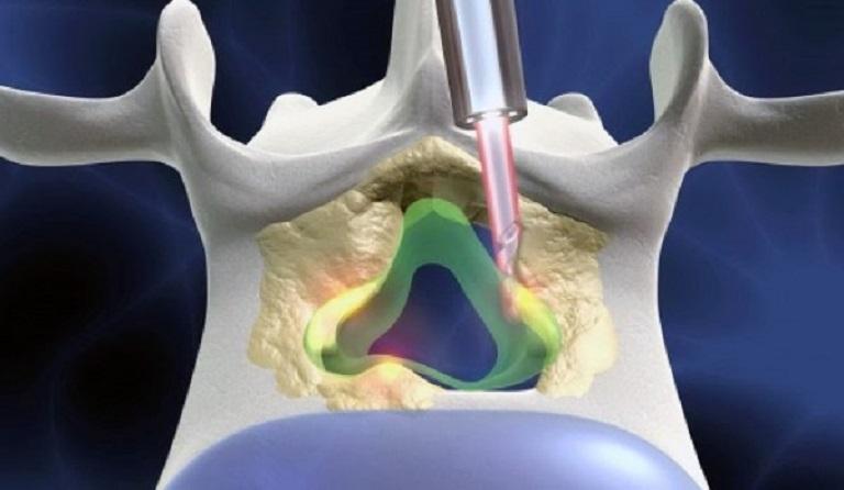 Sử dụng mũi kim lớn đưa các bước sóng vào vị trí thoát vị