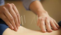 Huyệt giáp tích - châm cứu điều trị các bệnh lý phủ tạng, đau khớp cột sống