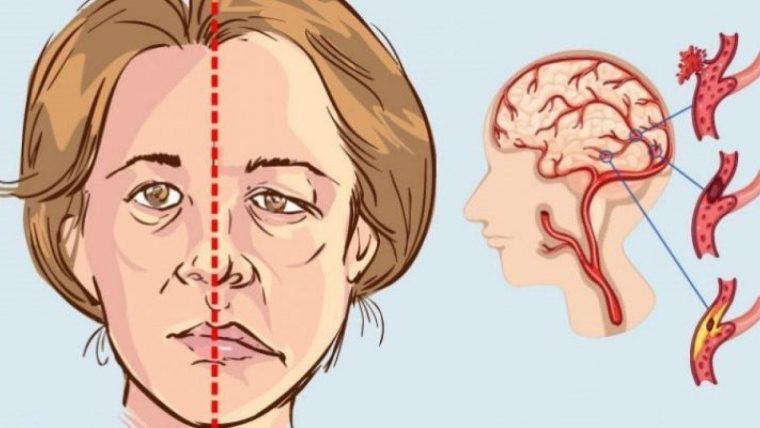 Bị lệch méo miệng do tai biến có thể được trị khỏi bằng phương pháp bấm huyệt
