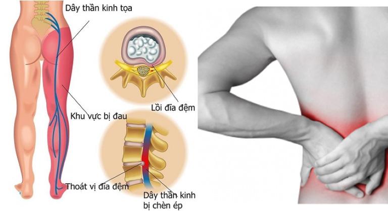 Thoát vị đĩa đệm l5 s1 điển hình với các cơn đau lan tỏa ở vùng thắt lưng và mông, có thể lan xuống đùi, chân do ảnh hưởng của chèn ép dây thần kinh