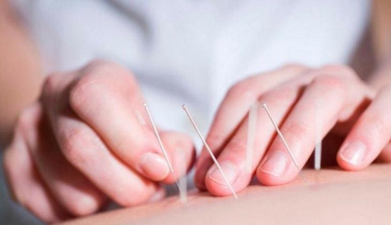 Cấy chỉ chữa thoái hoá đốt sống lưng là một phương pháp an toàn, nhưng không phải ai cũng có thể thực hiện được