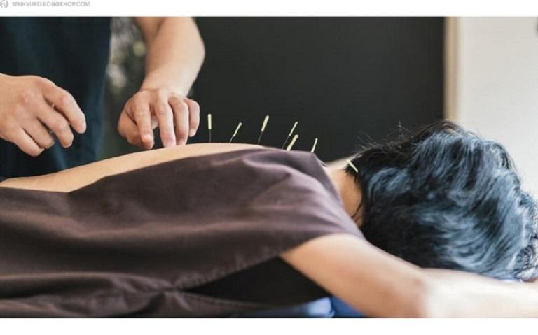 Châm cứu - Liệu pháp vật lý trị liệu chữa thoái hóa