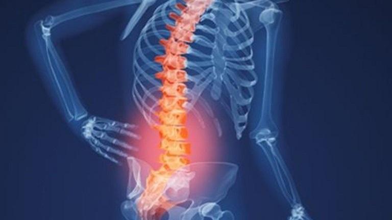 Thoái hoá đốt sống lưng: Nguyên nhân, triệu chứng và cách chữa