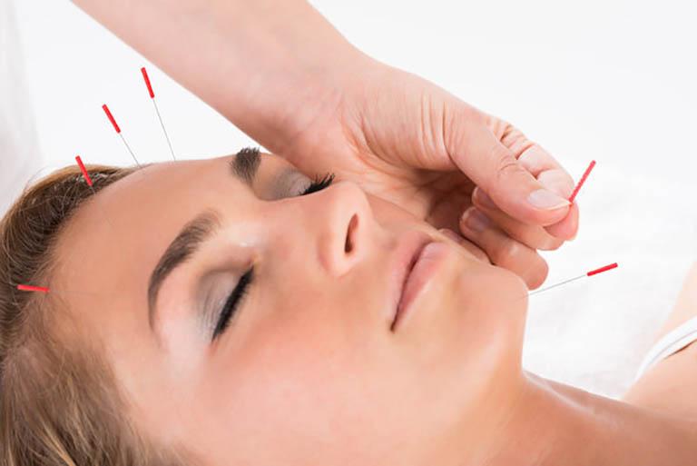 Đã có rất nhiều bằng chứng khoa học chứng minh hiệu quả của châm cứu đối với bệnh đau đầu migraine