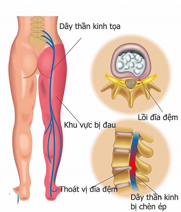 Đau vùng lưng và chân có thể do bệnh lý đau thần kinh tọa