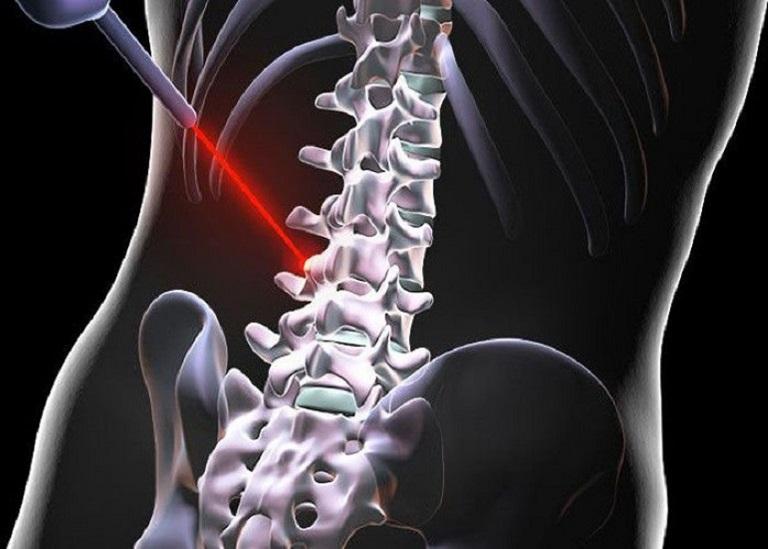 Điều trị thoát vị đĩa đệm bằng laser là phương pháp điều trị mang lại hiệu quả cao