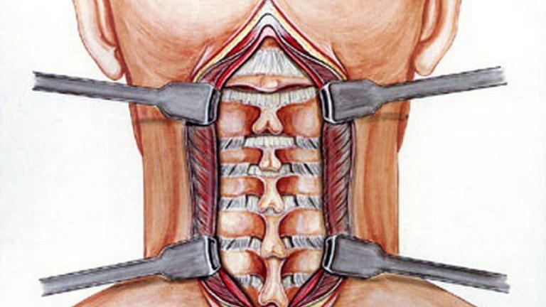 Phẫu thuật là phương pháp điều trị đau vai gáy hiệu quả nhưng tốn kém và nhiều hệ lụy