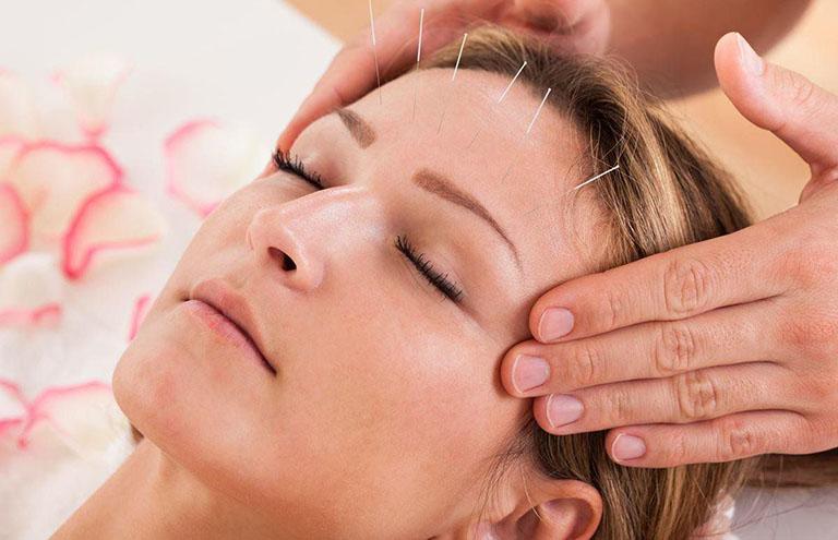 Phương pháp châm cứu được áp dụng để điều trị mất ngủ kéo dài cho người bệnh