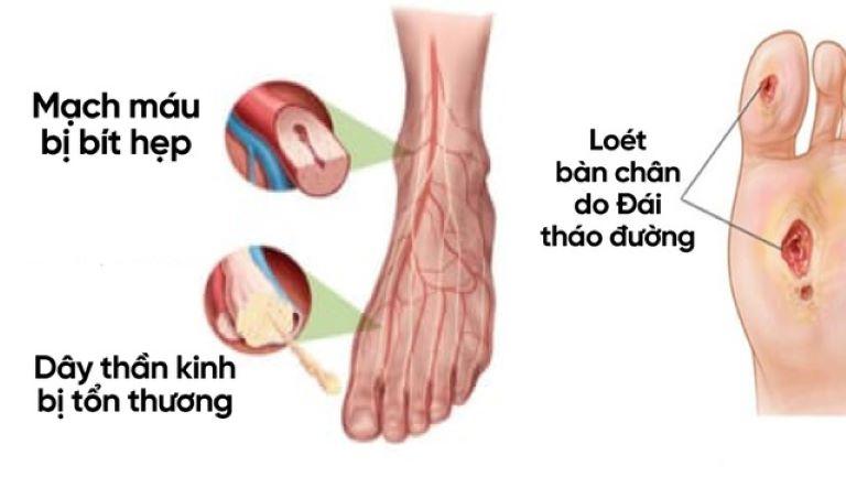 Tê bì chân tay do biến chứng bệnh tiểu đường có thể dẫn tới teo cơ, liệt hoặc xuất hiện các vết thương khó lành có nguy cơ hoại tử, phải cắt cụt chi.