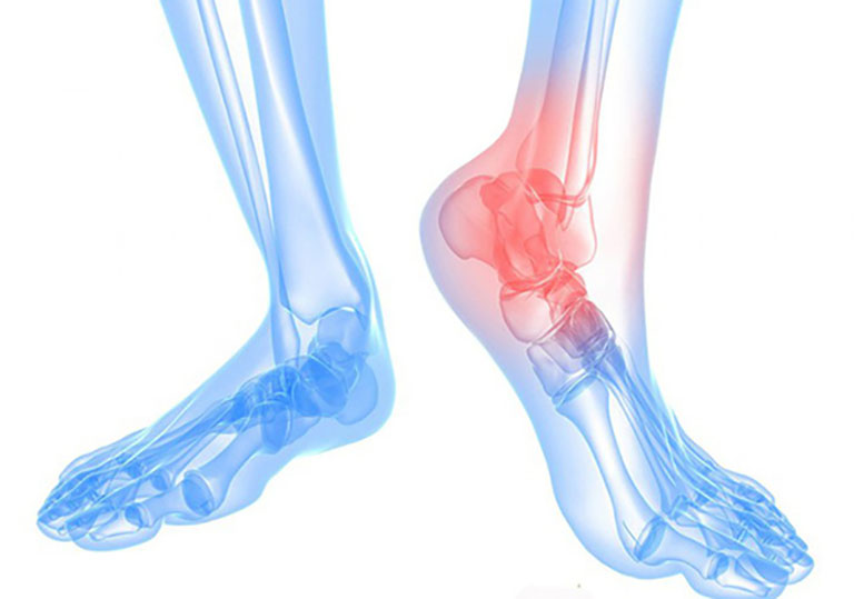 Thoái hóa khớp cổ chân là gì? Nguyên nhân, biểu hiện và cách điều trị