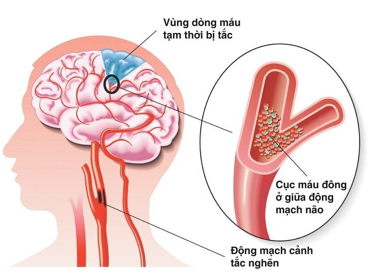 Đau đầu vùng trán do mắc các bệnh lý về mạch máu não