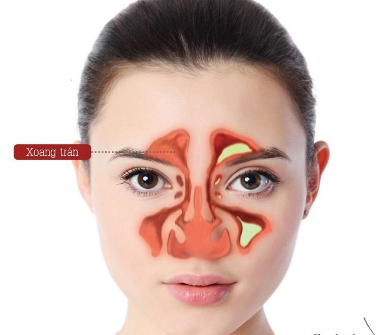 Đau đầu vùng trán do bệnh viêm xoang gây nên