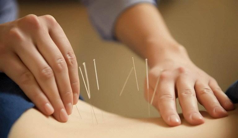 Châm cứu là giải pháp giảm đau lưng giữa bên trái được nhiều bệnh nhân lựa chọn