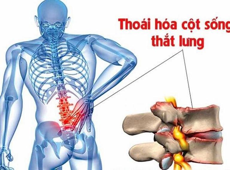 Đau lưng giữa bên trái có thể là dấu hiệu bệnh thoái hóa đốt sống lưng