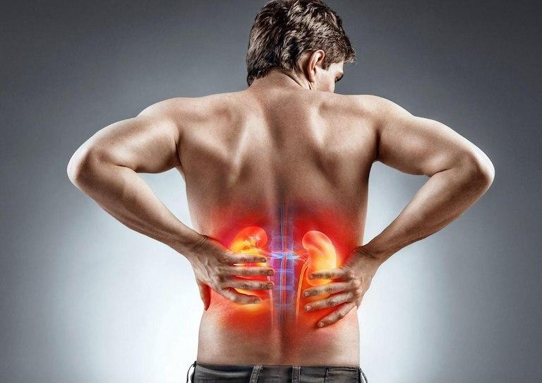 Đau lưng mãn tính có thể do bệnh thận gây nên