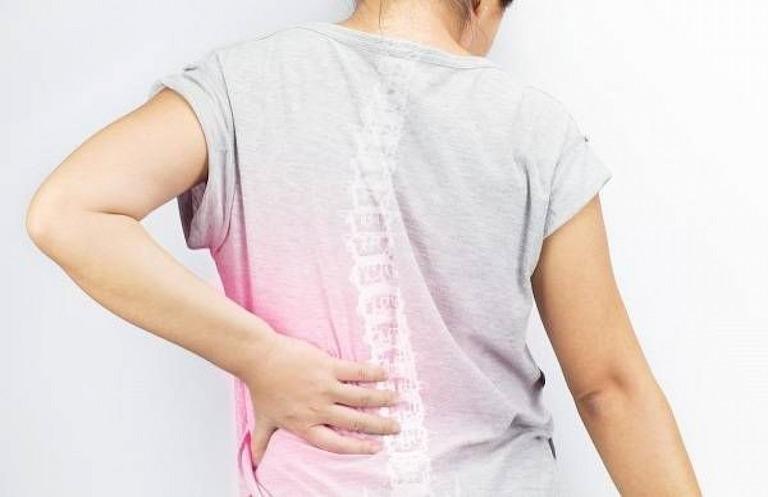Đau dây thần kinh liên sườn cũng là nguyên nhân gây đau lưng nhức mỏi vai gáy