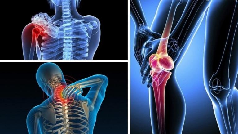 Bất kể thời tiết, đau nhức xương khớp gây ra khó chịu, phiền toái mọi lúc mọi nơi
