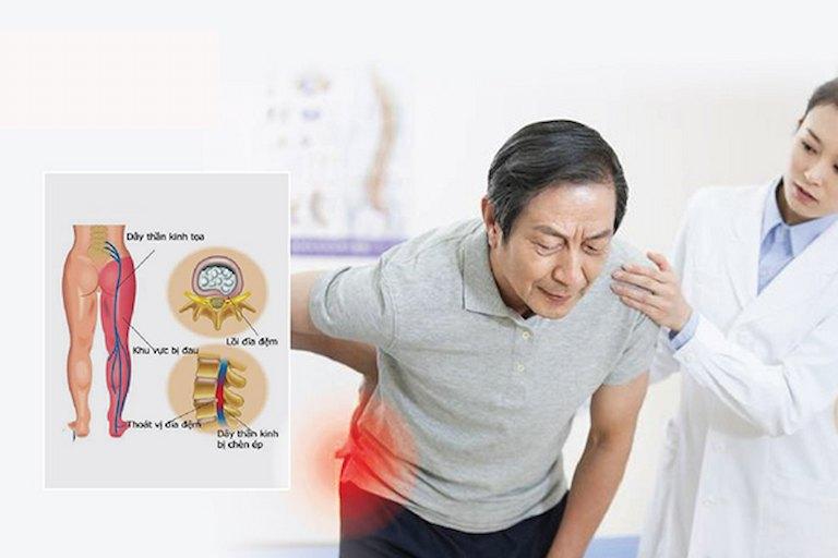 Đau thần kinh tọa: Nguyên nhân của những khó khăn, chật vật trong đi lại, sinh hoạt, vận động