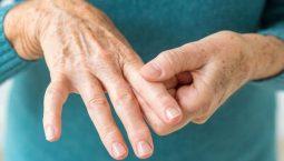 5 cách điều trị viêm khớp dạng thấp HÀNG ĐẦU hiện nay